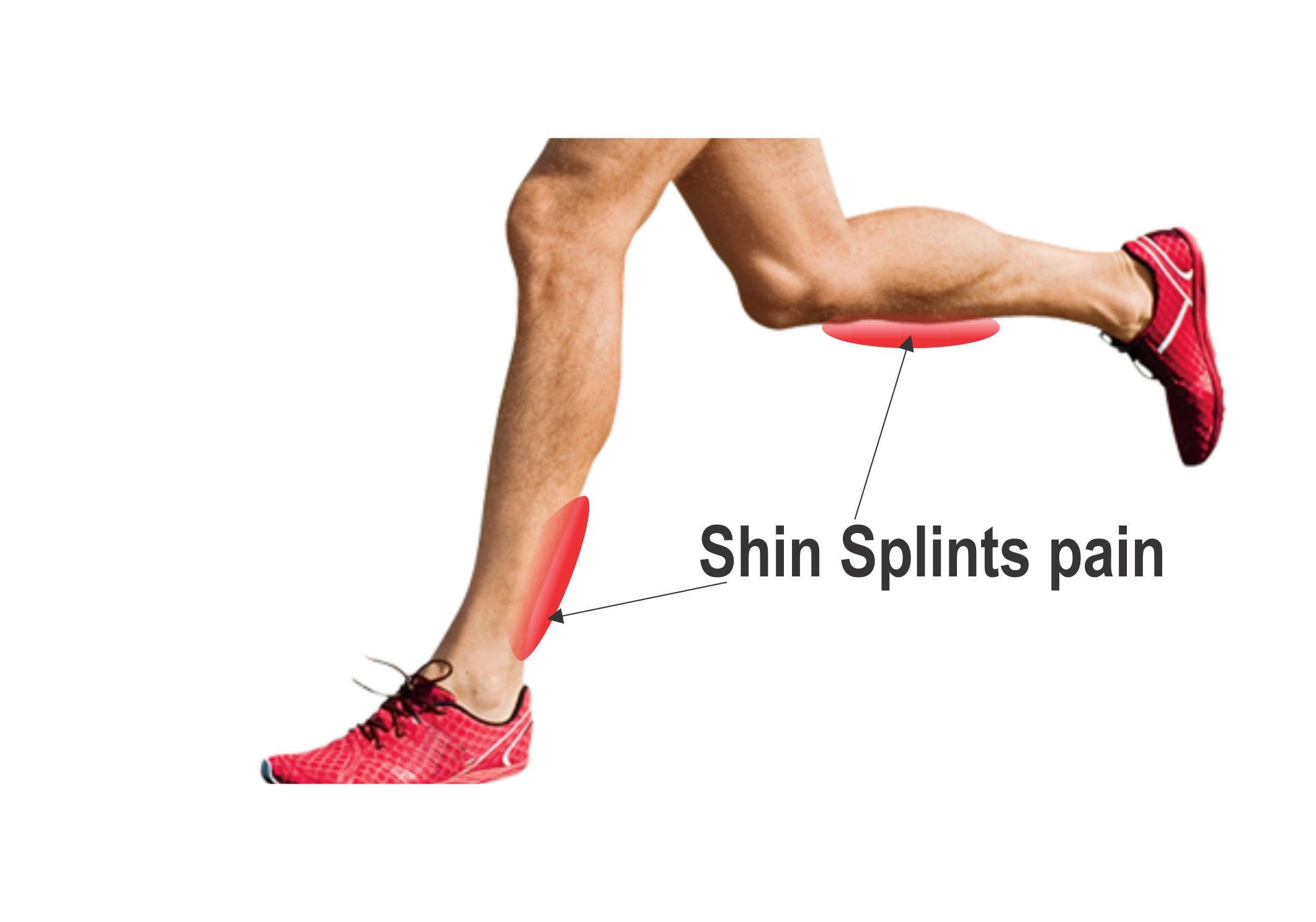 Shin Splints R.I.C.E Treatments